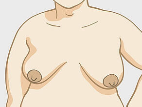 Different breasts: medium-sized pear-shaped (slightly oval) breasts