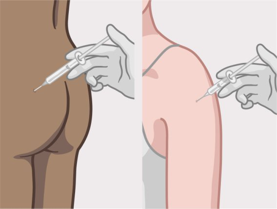 Doctor giving a contraceptive injection in a woman's buttocks or upper arm