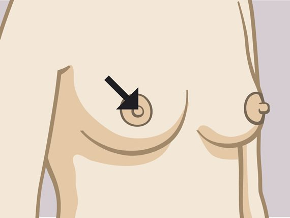 Woman's breast with indication of the nipple