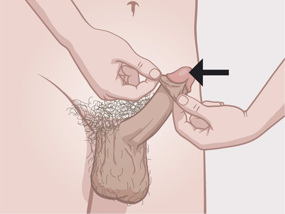 Penis with indication of the glans